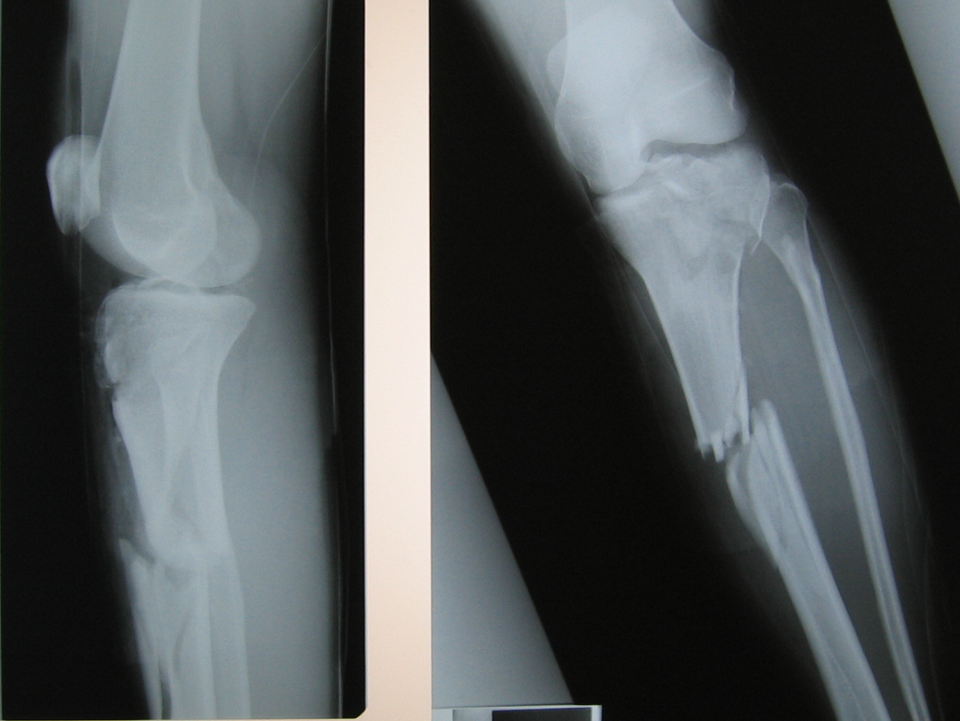 fracture with right tibial plateau osteotomy fracture of tibial